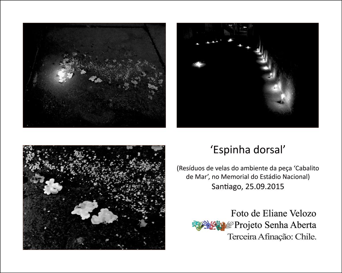 51-  ESPINHA DORSAL